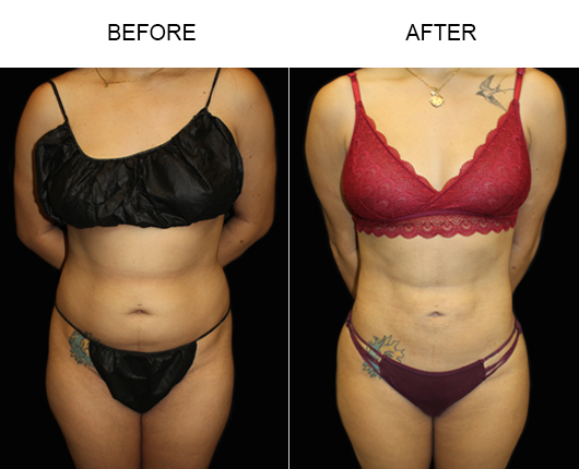 Before & After Liposuction Treatment In Florida