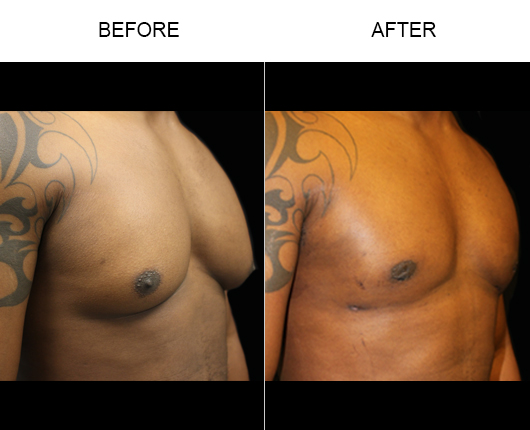 Before And After Lipo