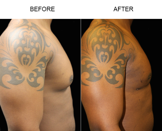 Before & After Lipo