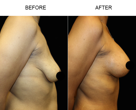 Before & After Breast Lift Surgery
