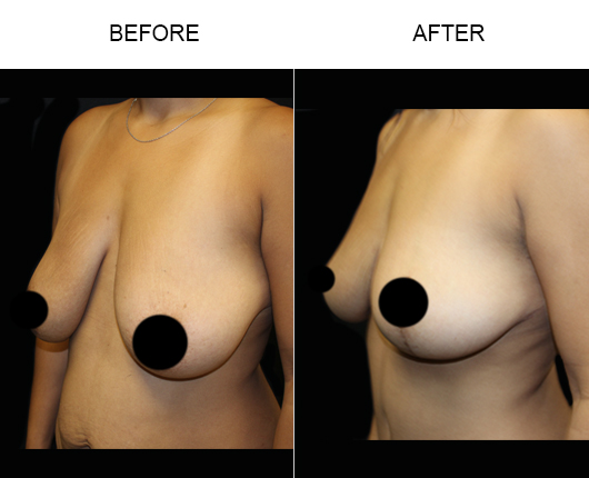 Breast Lift Treatment Before And After