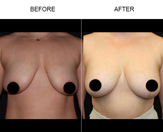 Before And After Breast Lift Treatment