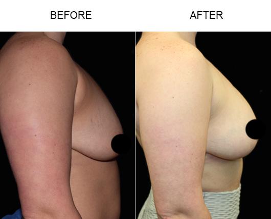 Breast Lift Treatment Results