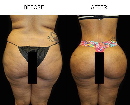 Before & After Brazilian Butt Lift