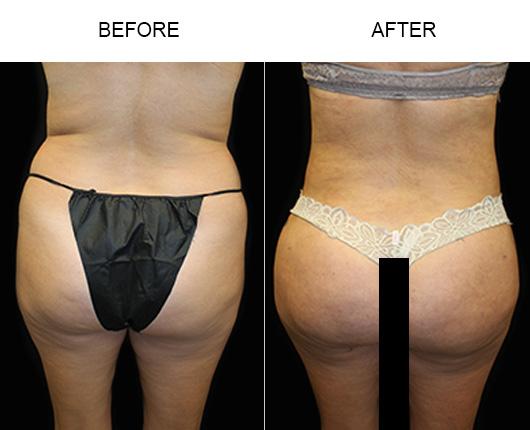Brazilian Butt Lift Surgery Before And After