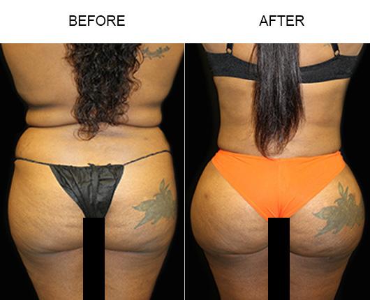 Brazilian Butt Lift Surgery Before & After