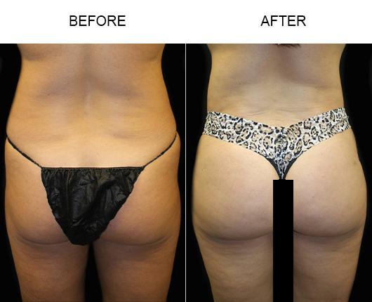 Before And After Brazilian Butt Lift Surgery