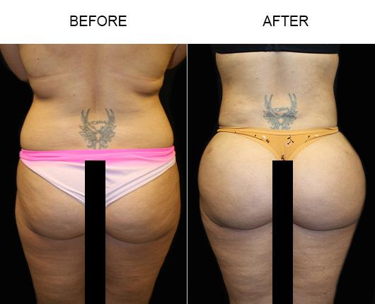 Brazilian Butt Lift Surgery Results