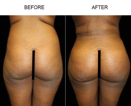 Brazilian Butt Lift Treatment Before And After