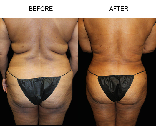 Florida Liposuction Before And After