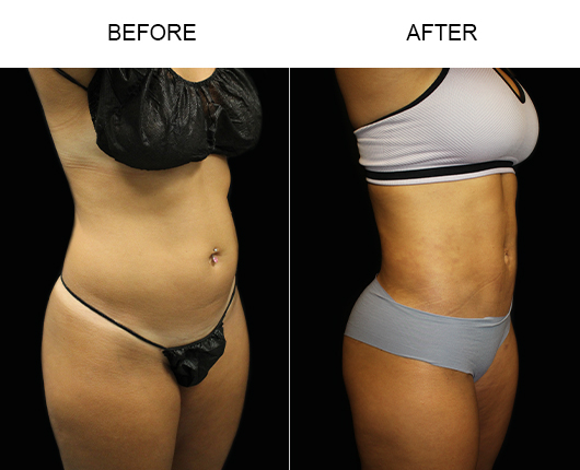 Liposuction Treatment Before And After