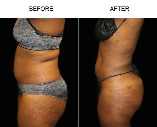 Liposuction Treatment Results