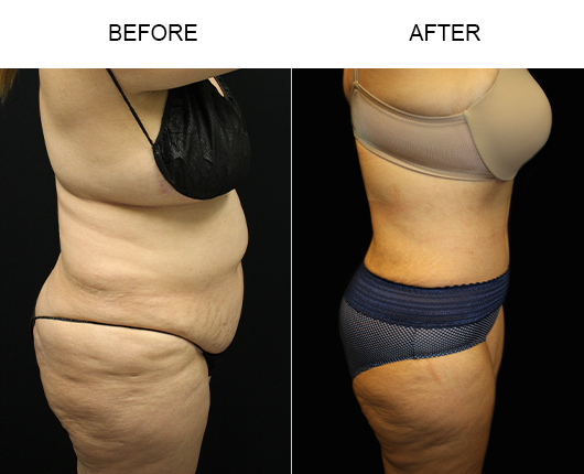 Before & After Tummy Tuck Surgery