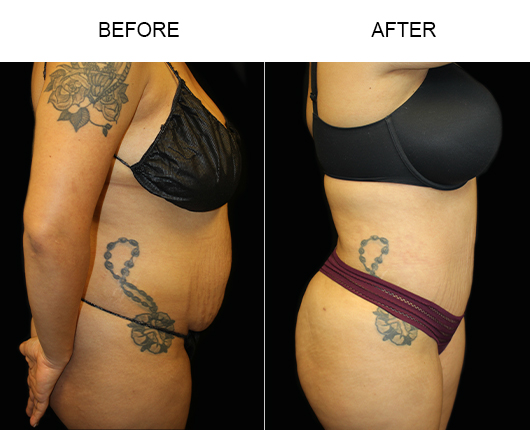 Tummy Tuck Treatment Before & After