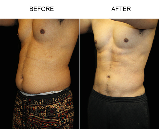Male Liposuction Before & After