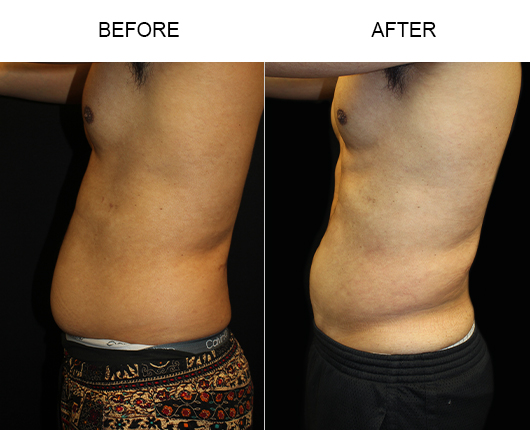 Before And After Male Liposuction