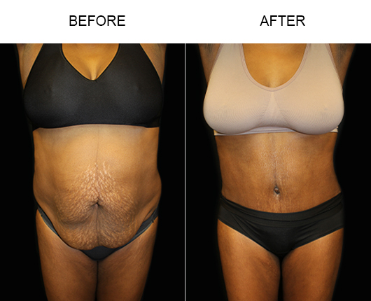 Before And After Tummy Tuck Treatment In Florida