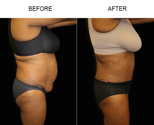 Florida Tummy Tuck Treatment Results