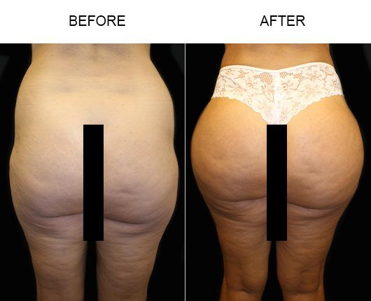 Before & After Brazilian Butt Lift Surgery