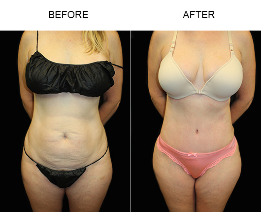 LowCut Tummy Tuck Before And After