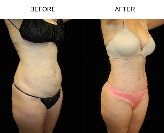 LowCut Tummy Tuck Before & After