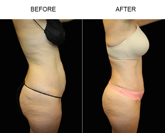 LowCut Tummy Tuck Results