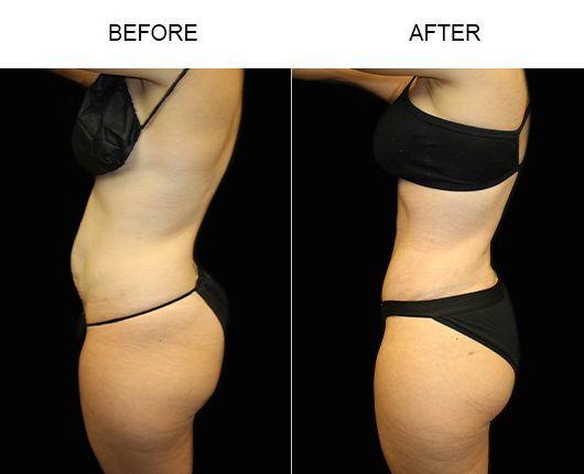 Low Cut Tummy Tuck Results