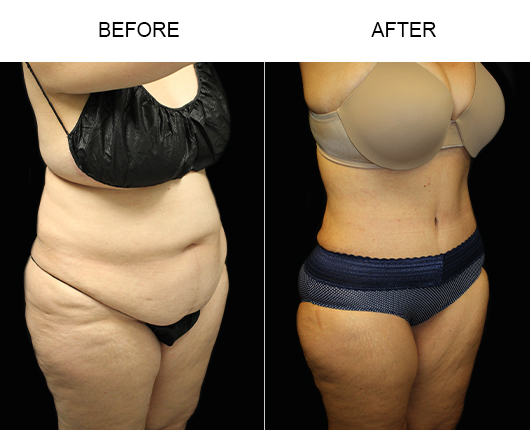 LowCut Abdominoplasty Before & After