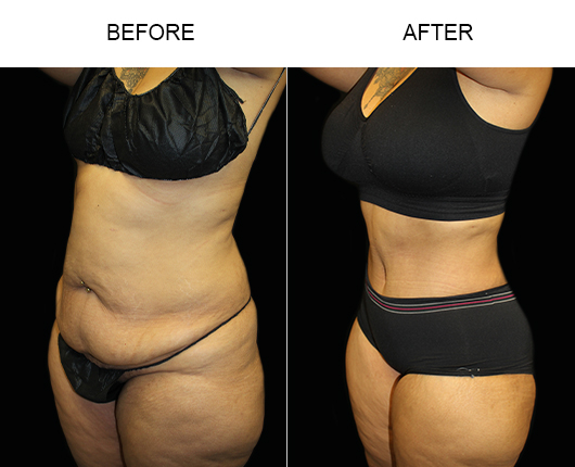 Before & After LowCut Tummy Tuck