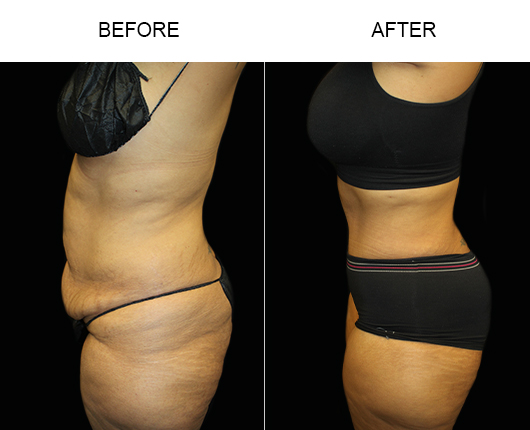 Before And After Low Cut Tummy Tuck