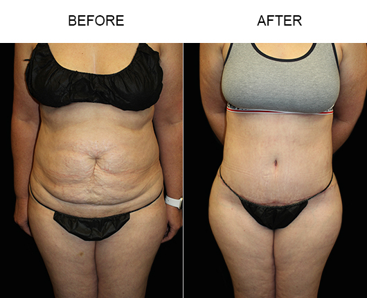Before & After Low Cut Tummy Tuck