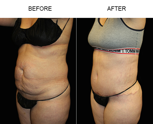 Before And After LowCut Abdominoplasty