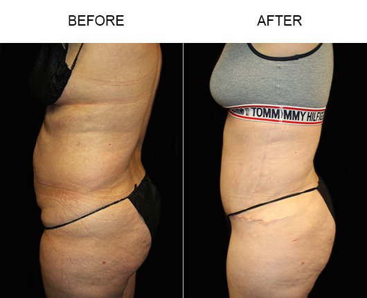 Before & After LowCut Abdominoplasty