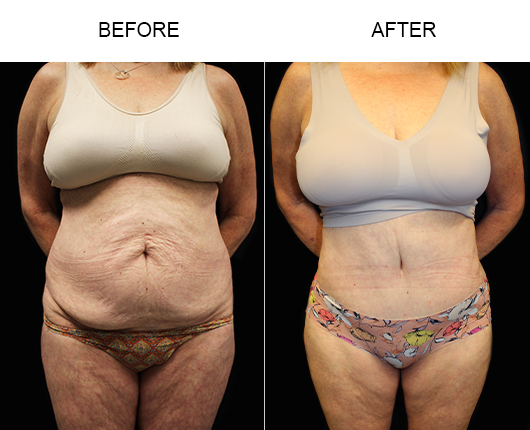 Before And After Low Cut Abdominoplasty