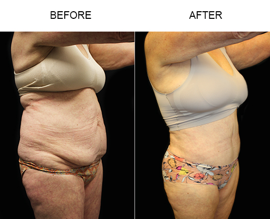 Before & After Low Cut Abdominoplasty