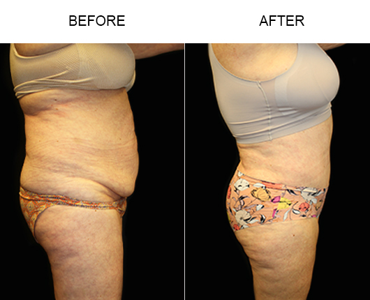 LowCut Tummy Tuck Surgery Before And After