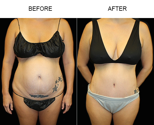 LowCut Tummy Tuck Surgery Before & After
