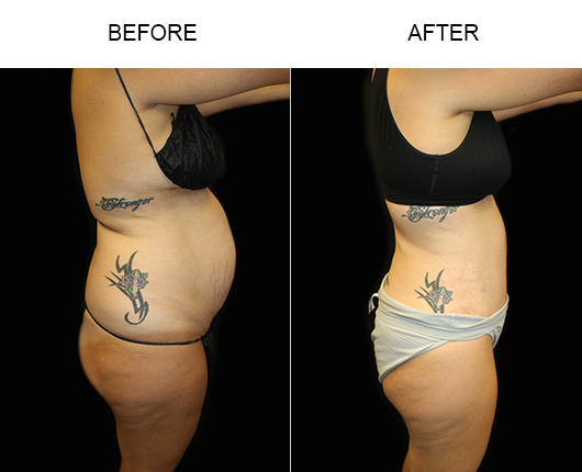 Low Cut Tummy Tuck Surgery Before And After