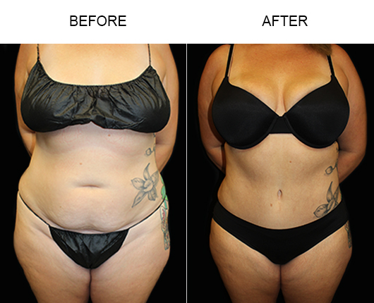 Low Cut Tummy Tuck Surgery Before & After