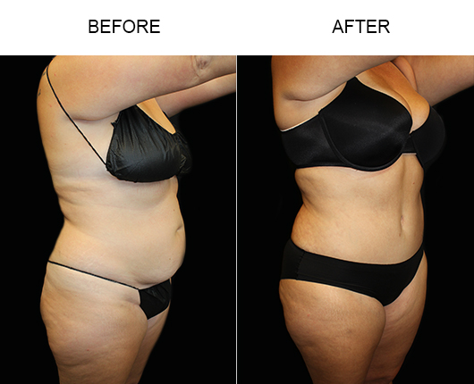 Low Cut Tummy Tuck Surgery Results