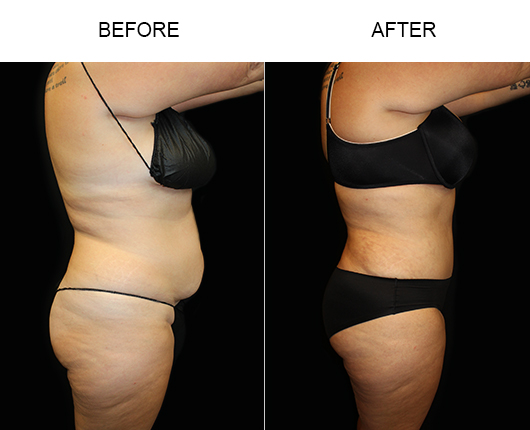 LowCut Abdominoplasty Surgery Before And After