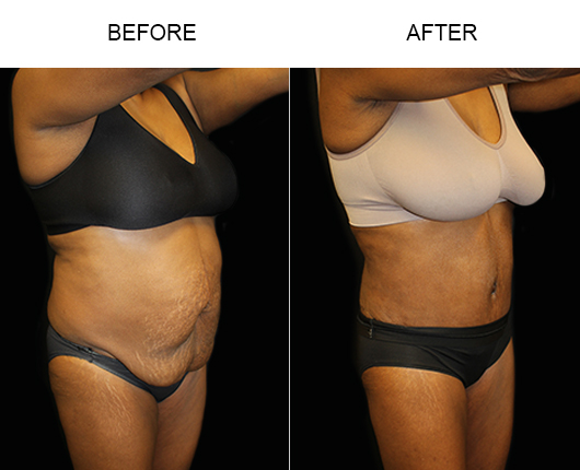 LowCut Abdominoplasty Surgery Results
