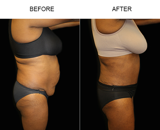 Low Cut Abdominoplasty Surgery Before And After