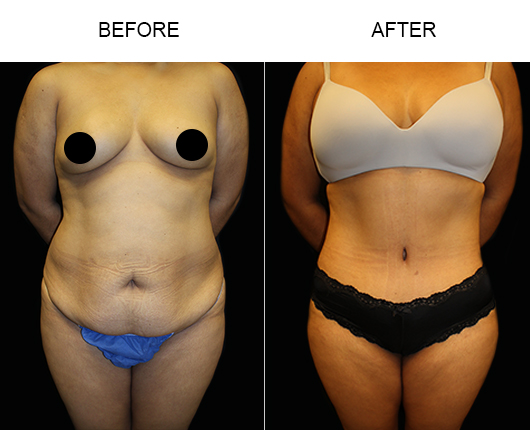 Low Cut Abdominoplasty Surgery Before & After