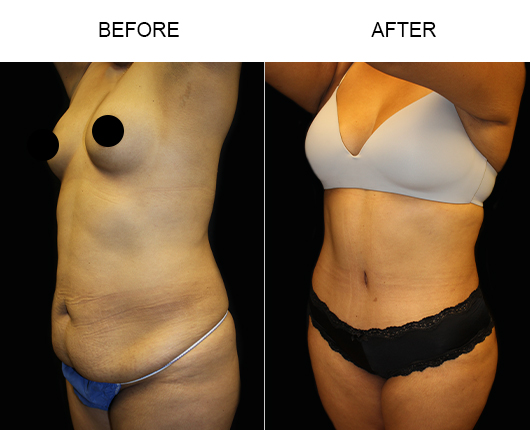 Low Cut Abdominoplasty Surgery Results