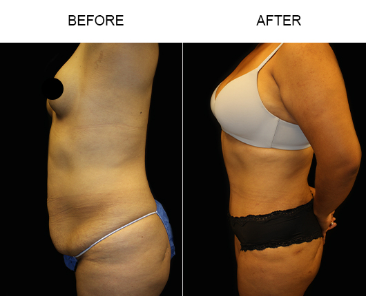 Before And After LowCut Tummy Tuck Surgery