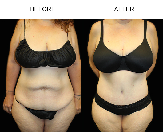 Before & After LowCut Tummy Tuck Surgery