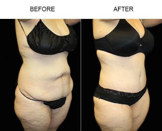 Before And After Low Cut Tummy Tuck Surgery