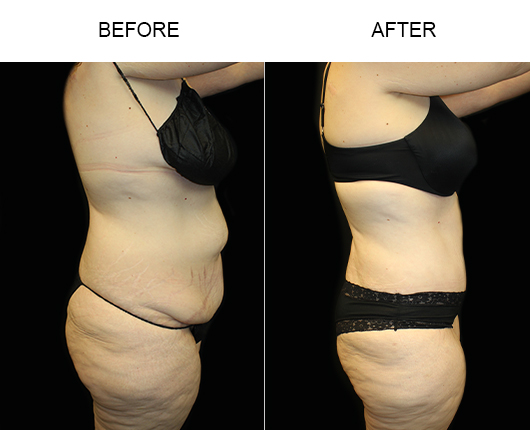 Before & After Low Cut Tummy Tuck Surgery