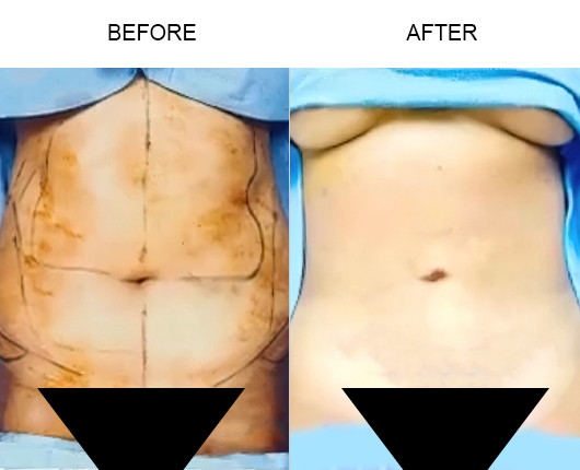 Lipo 360 Before And After